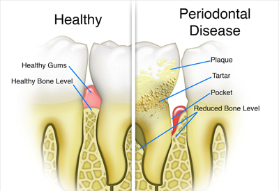 Gum disease can lead to bone loss and eventual tooth loss.